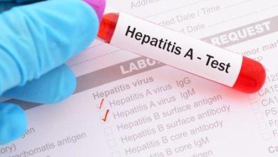 Photo of Clientela puede haber estado expuesta a hepatitis A en restaurante de Horn Lake