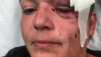 Photo of Journalist who lost eye in protests: Minorities face systemic violence in US