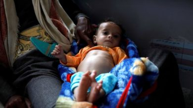 Photo of Child malnutrition worsens in Yemen due to lack of relief funding